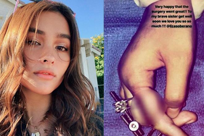 Liza Soberano, lumipad sa US para ipaopera  ang kanyang fractured finger